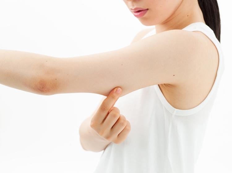 二の腕の肌