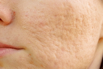 デコボコクレーター肌
