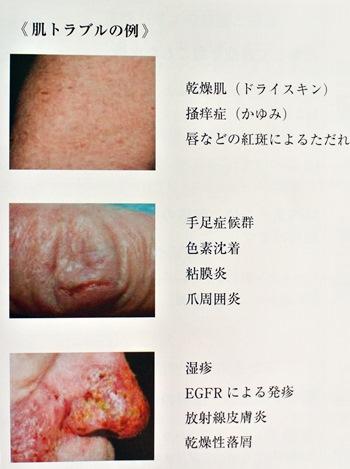 ロベクチン肌トラブル例