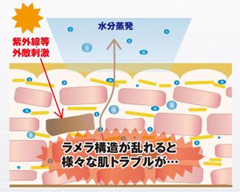 ラメラ構造肌トラブル